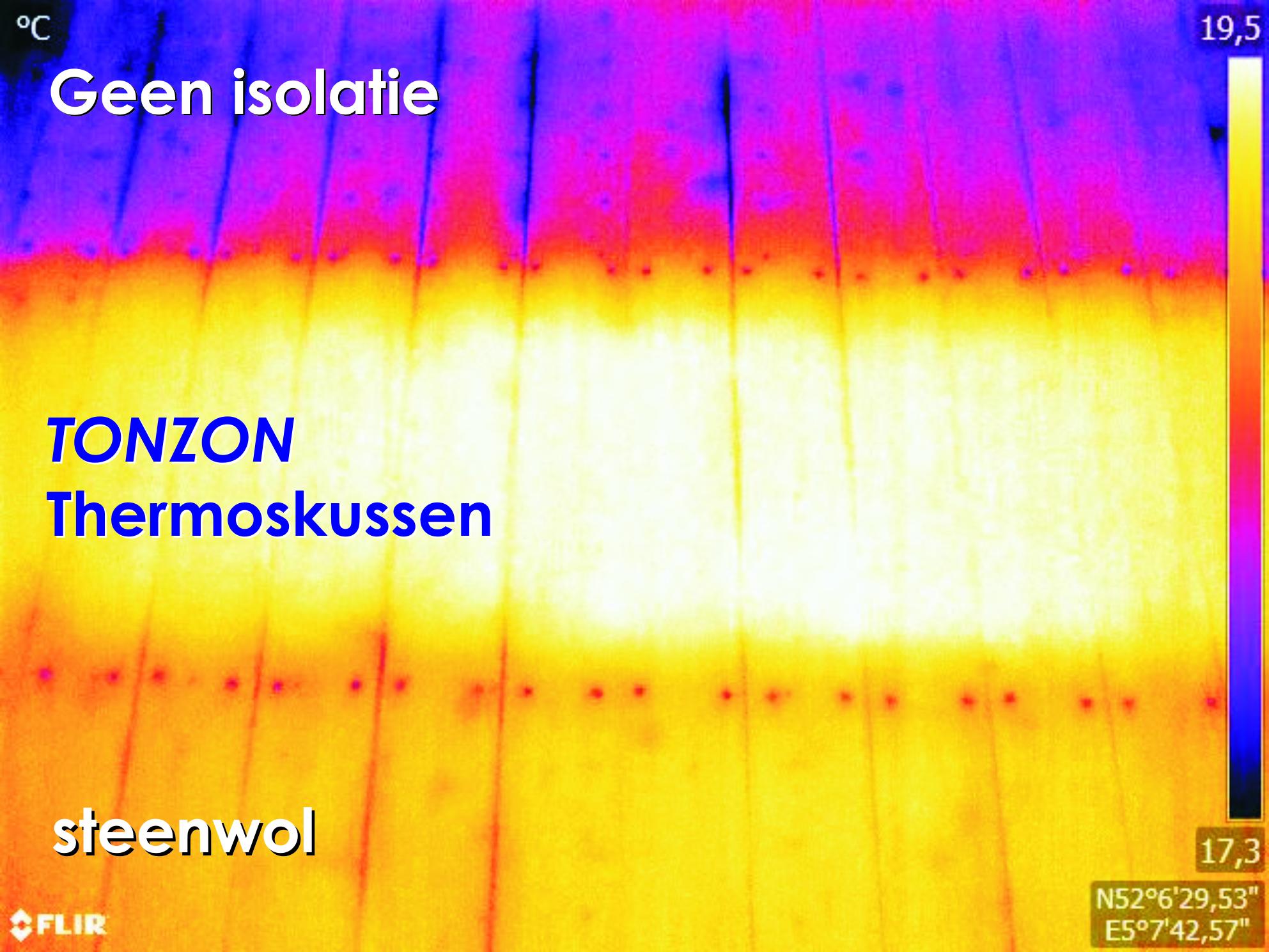Tonzon test