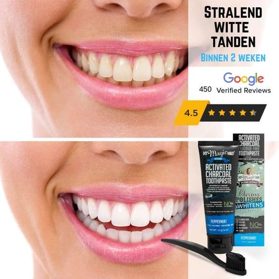 Zwarte Tandpasta Voor Wittere Tanden De Betere Wereld
